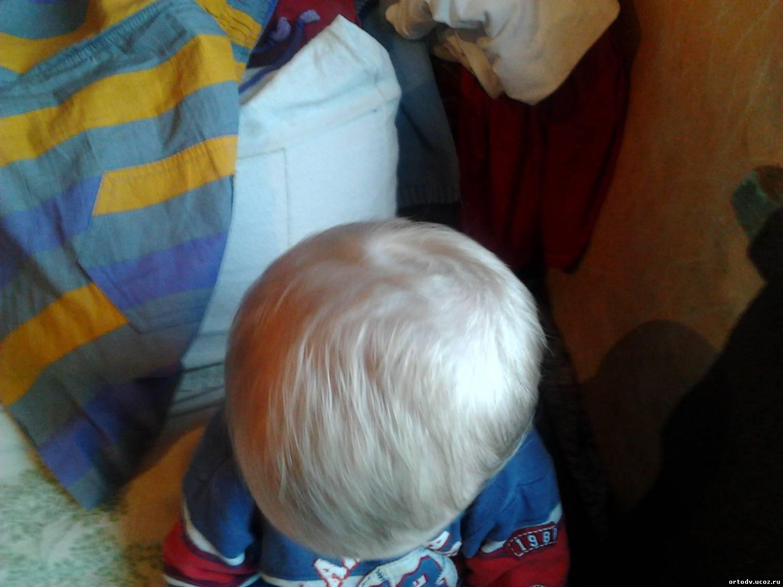 Скошена голова у ребенка фото