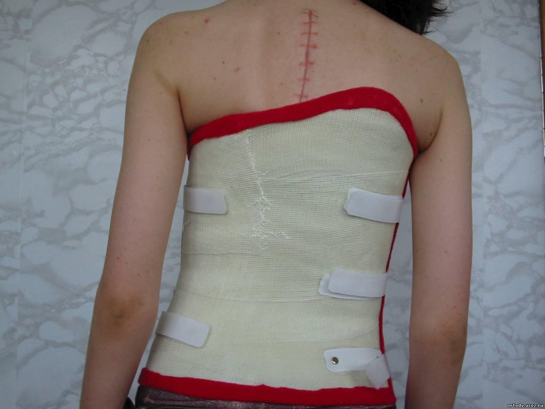 Корсеты для позвоночника после операции на позвоночнике