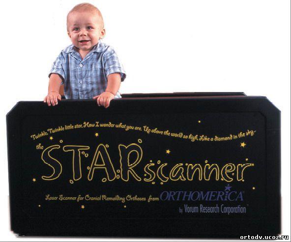 Starband исправление деформаций черепа